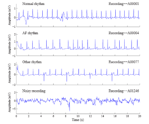 Focus on detection of arrhythmia and noise from
